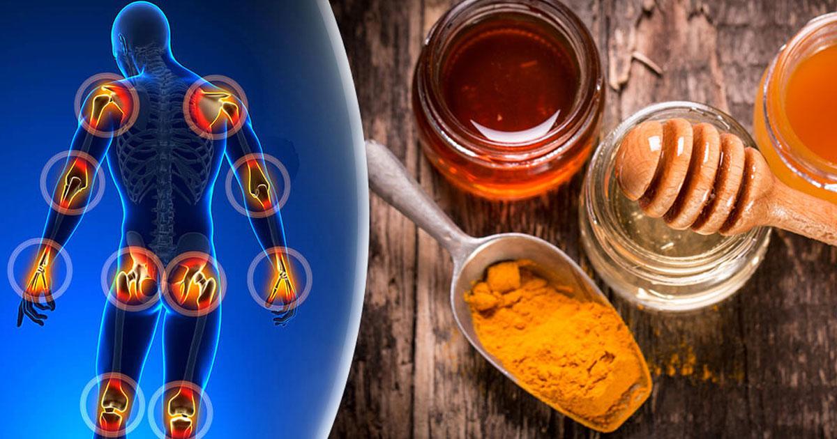 Tratament naturist pentru osteoartrita
