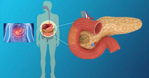 8 semne ale bolii pancreasului – Pancreatita