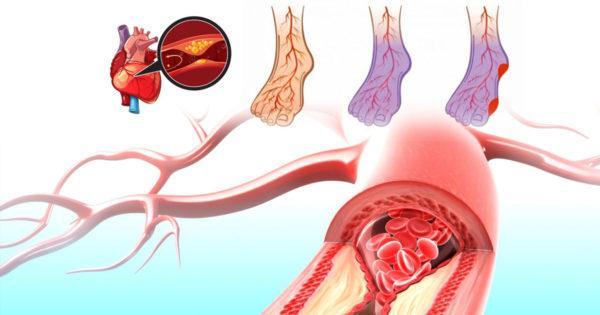 7 remedii pentru hipertensiune arterială, dureri de inimă și vene varicoase