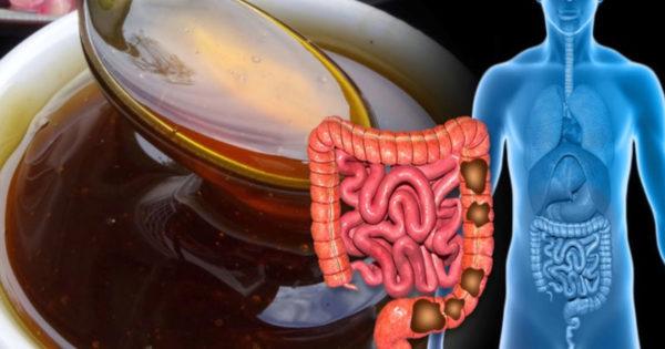 5 produse care vor scăpa de problemele digestive: flatulență, arsuri la stomac, aciditate ridicată, diaree și multe altele!