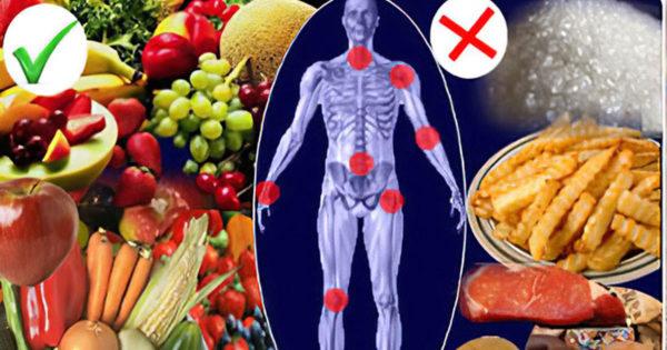 Simptome și cauze ale artritei reumatice, și cum să o preveniți