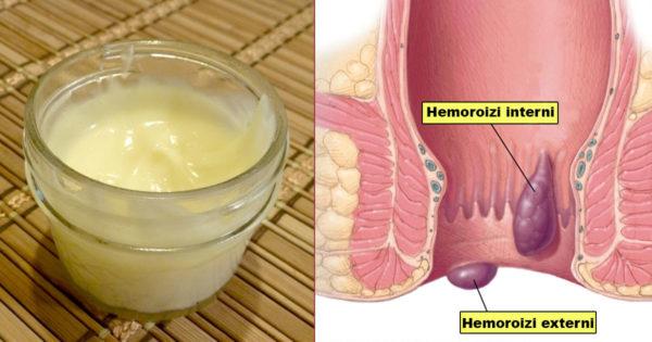 Iată cum se face o cremă de casă pentru tratarea hemoroizilor