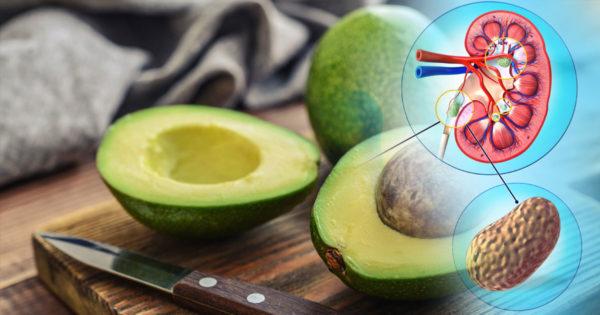 Rețetă indiană cu avocado pentru tratamentul pietrelor la rinichi și la vezica biliară