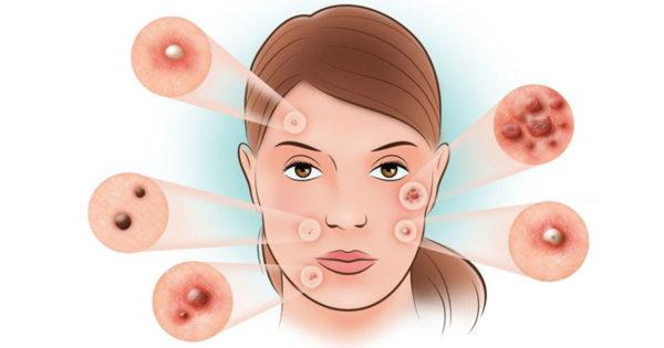 6 tipuri de acnee și posibile cauze