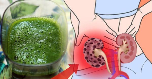 5 produse care îți vor curăța cu ușurință corpul de toxine