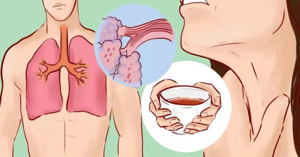 eliminarea mucusului din gat)
