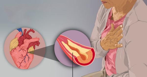 Semnele timpurii ale unei posibile insuficiențe cardiace care nu ar trebui ignorate