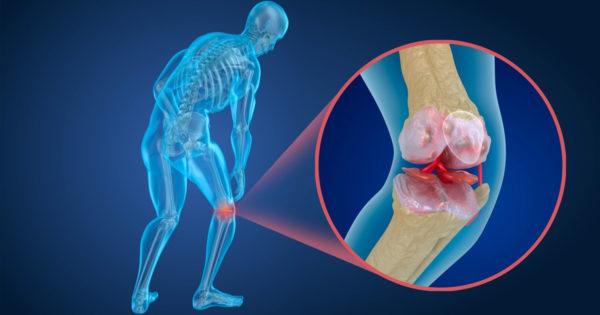 Scapă de durerea de genunchi! Un remediu natural care te va ajuta să faci față durerilor de genunchi