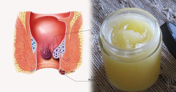 Remedii naturiste pentru hemoroizi interni și externi