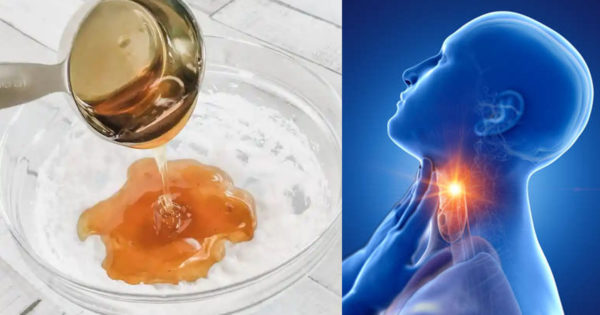 Miere + ulei de cocos și scorțișoară – remediu natural împotriva tusei și durerii în gât