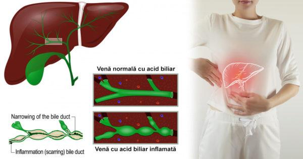 Cum să susțineți producția normală de bilă: 10 moduri naturale de a ajuta digestia